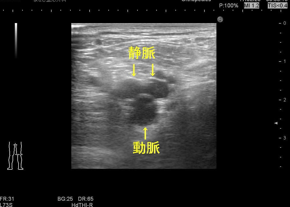 膝窩静脈1