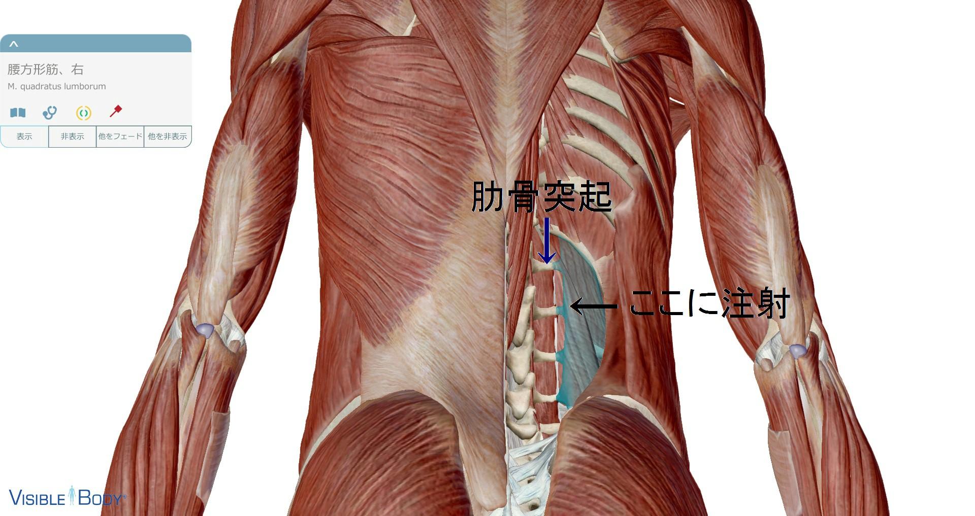 腰方形筋注射