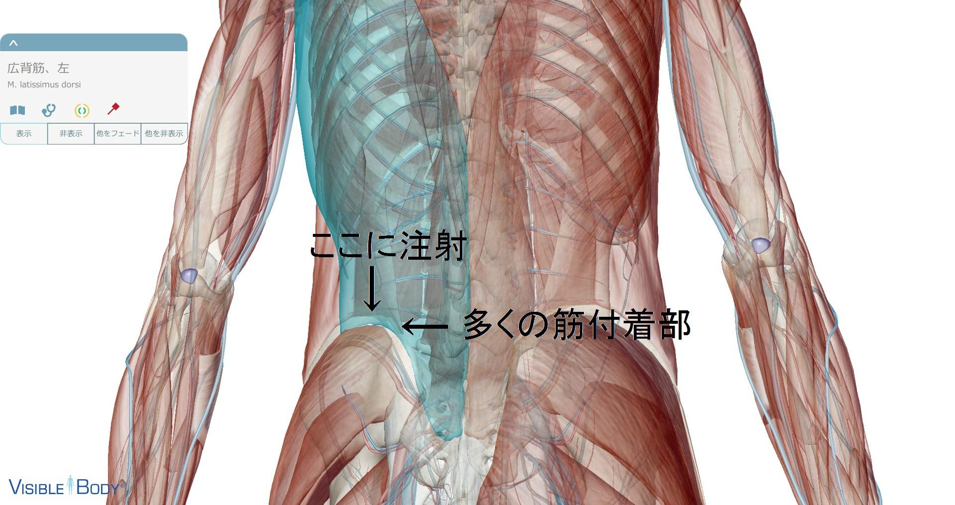 腸骨筋肉注射