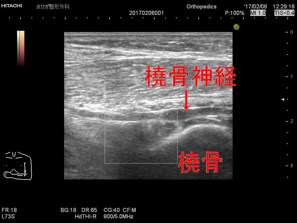 ]腫大橈骨神経長軸ドプラー