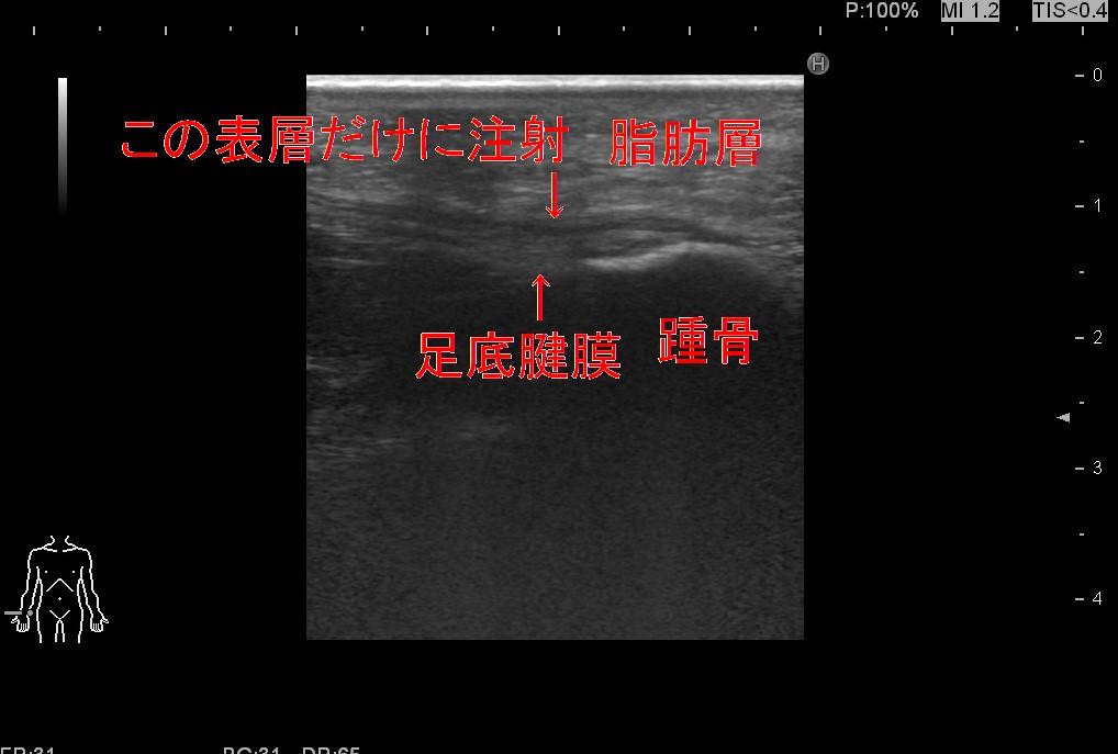 足底腱膜2