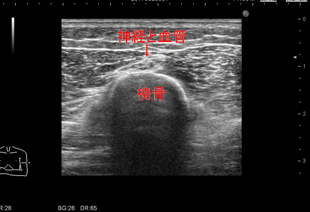 橈骨神経変更