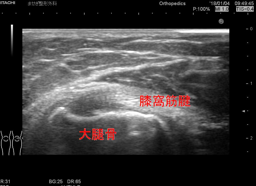 膝窩筋腱2