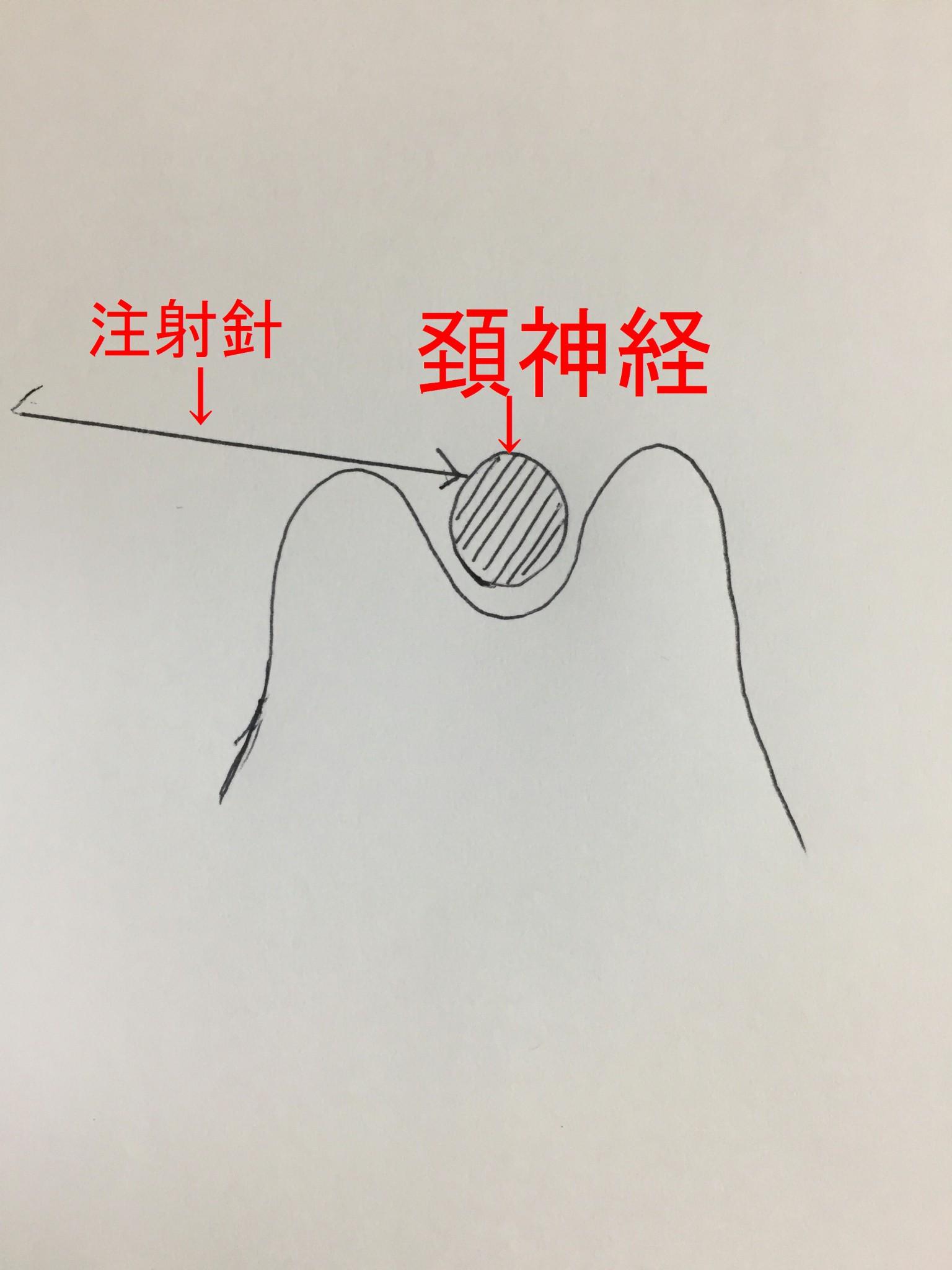 頚神経絵2