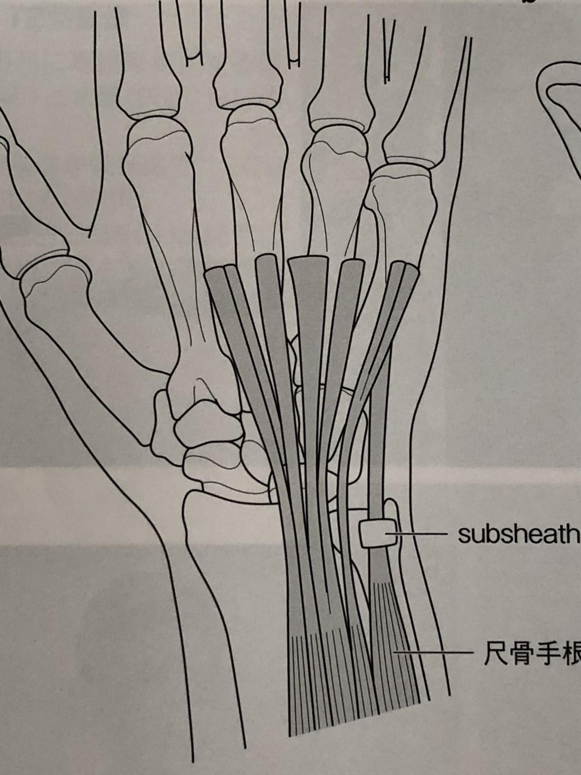 側 手 腱鞘炎 筋 尺 伸 根